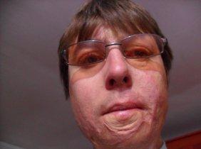 Vă rog ajutorul vostru pentru corecţia ochiul stîng, zona feţei, redorii gîtului, operaţie piciorul stîng.