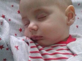 Matei suffers from severe congenital heart malformation
