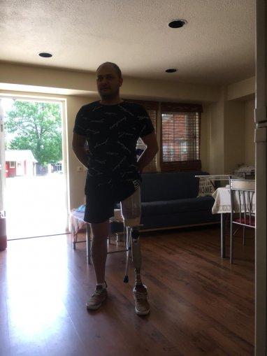 Eduard Nesterenco datorita oamenilor a primit proteza la picior!