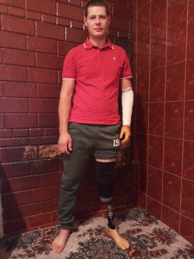 Încă un vis îndeplinit, încă un destin schimbat. Igor Dunasi, a primit proteza mult visată și așteptată de ani de zile!